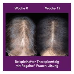 Regaine® Frauen Lösung 6 Monats-Packung Sparset
