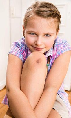 Mädchen mit Wunde am Knie