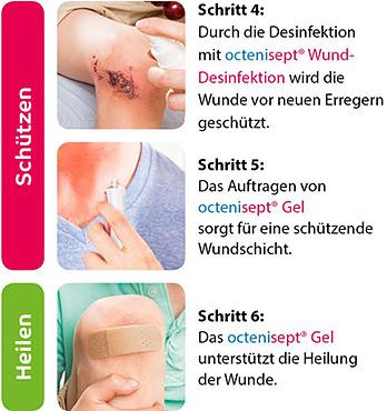 Octenisept Wundversorgung - Schritte 4-6