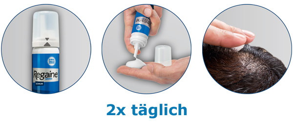 online pharmacy proscar